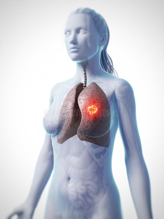 Lung cancer vector illustration