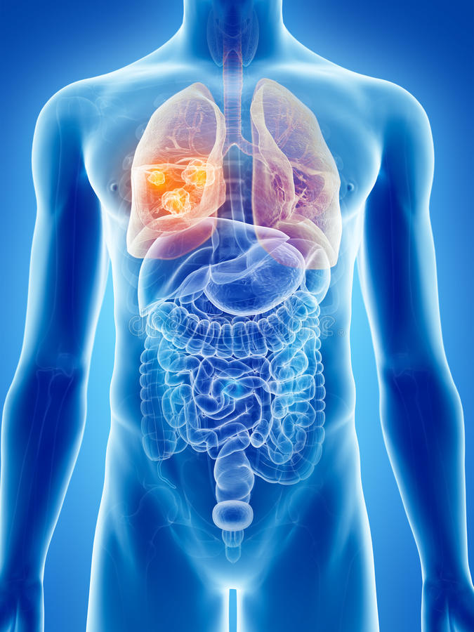 Lung cancer. 3d rendered, medically accurate illustration of lung cancer stock illustration