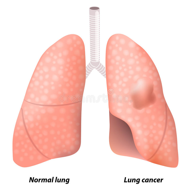 Lung cancer vector illustration