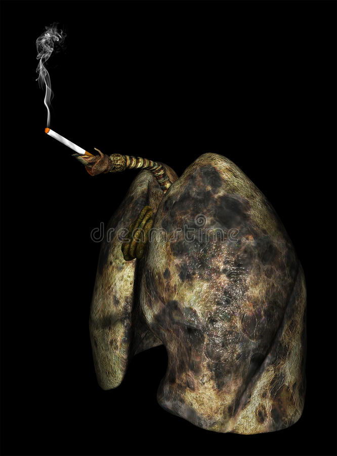 Lung Cancer Lungs Smoking Cigarette royalty-vrije illustratie