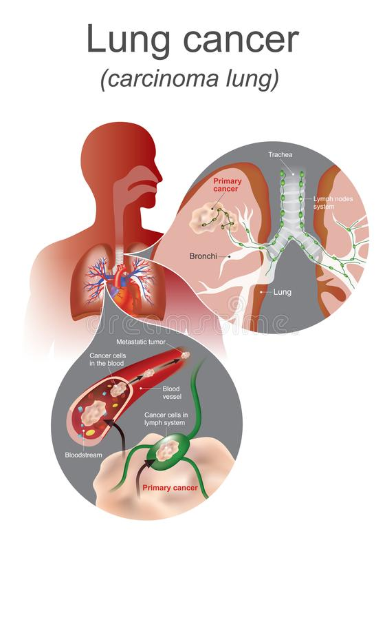 The Lung cancer is a malignant lung tumor characterized by uncontrolled cell growth in tissues of the lung. Lung stock illustration