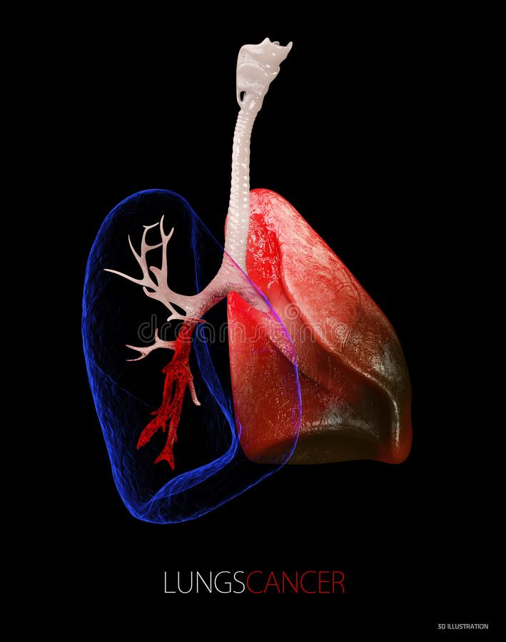 Lung cancer, pleural effusion 3d Illustration isolated black stock illustration