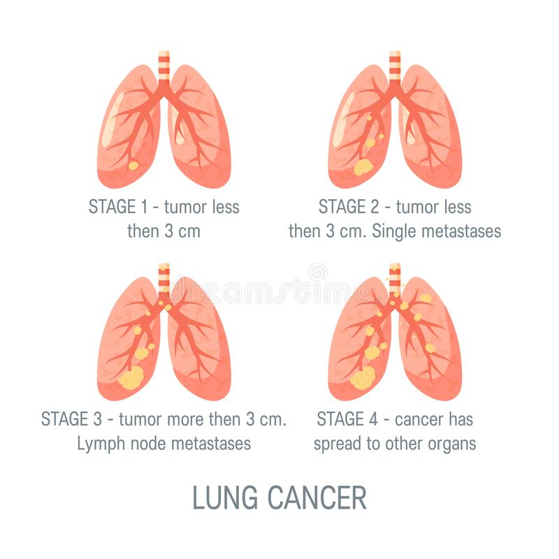Lung cancer vector concept in flat style. Lung cancer stages concept. Vector illustration in flat style for medical articles, posters, web banners, infographics royalty free illustration