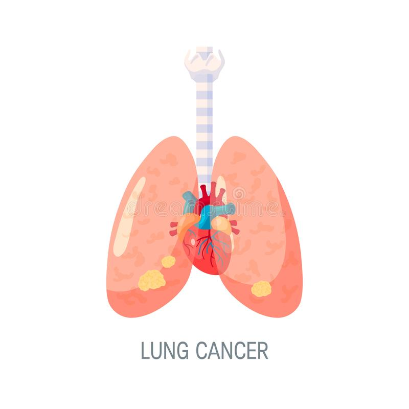 Lung cancer vector concept in flat style royalty free illustration