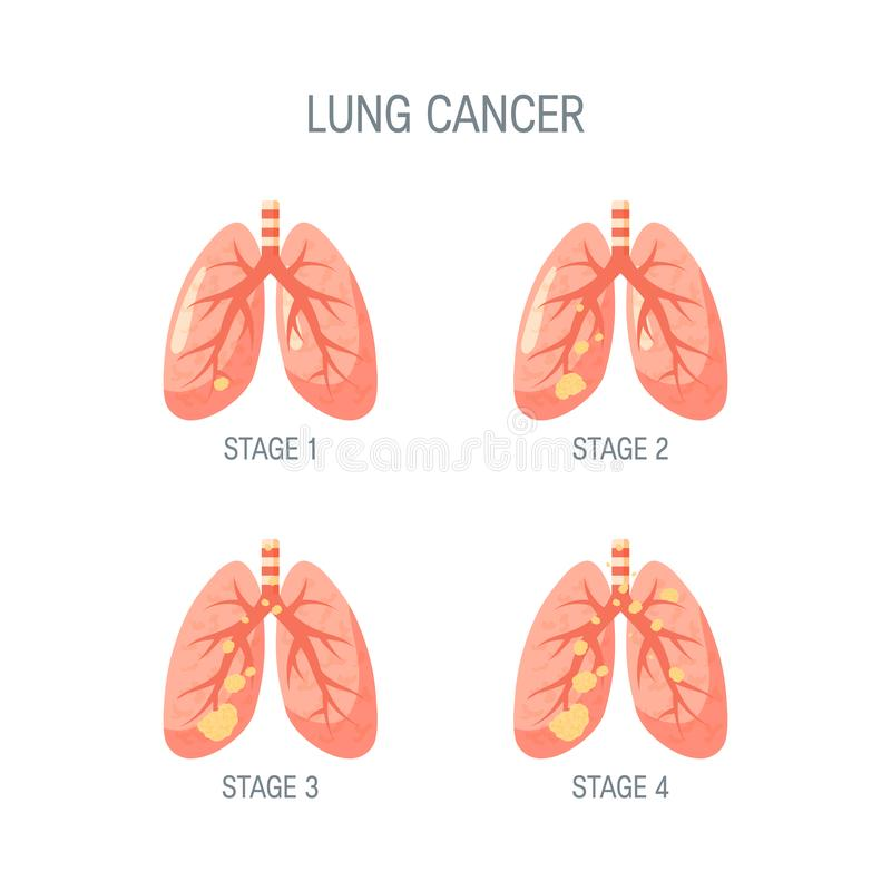 Lung cancer vector concept in flat style vector illustration