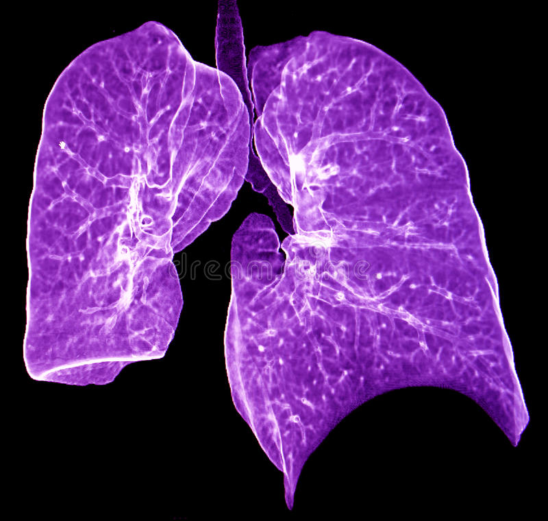 Download Lung CT Stock Image - Image: 34865861