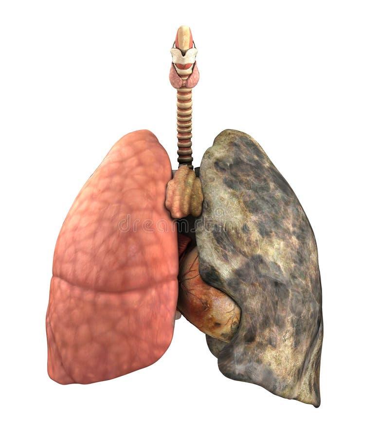 Lung Disease Before y después libre illustration