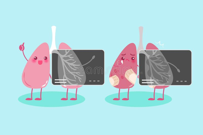 Lung with health conept. Before and after royalty free illustration