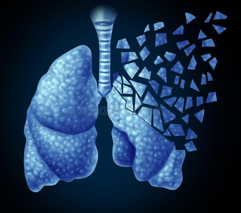 Lung Illness illustration de vecteur