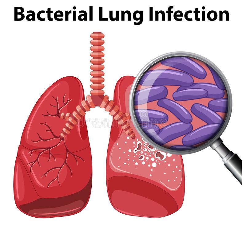 Lung Infection batterico su fondo bianco illustrazione vettoriale