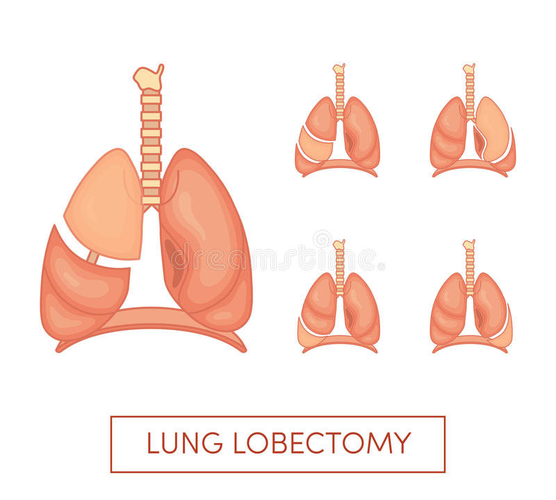 Lung lobectomy vector illustration