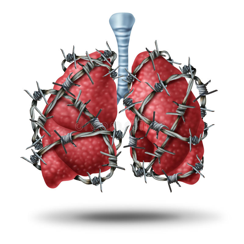 Lung Pain. Medical concept as a pair of human lungs organ wrapped with dangerous barbed or barb wire as a health care symbol of cardiovascular problems as stock illustration