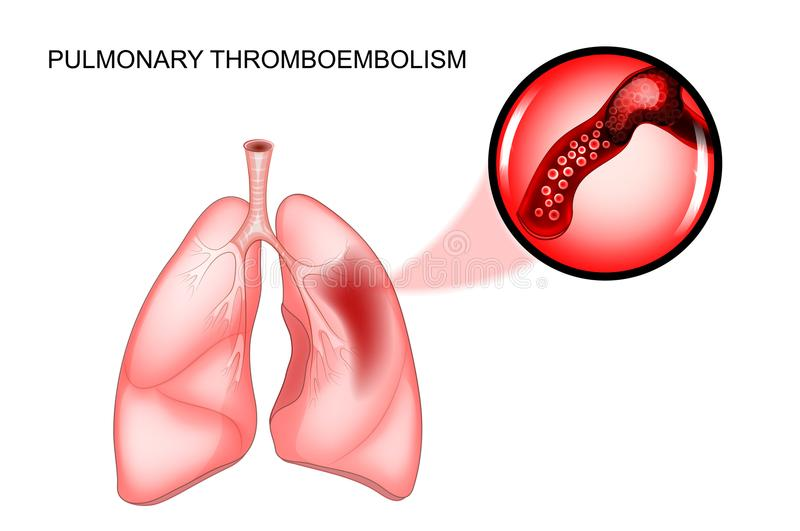 Lung- thromboembolism blodpropp stock illustrationer