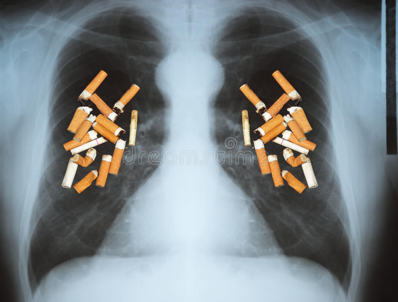 Lungcancer arkivbild