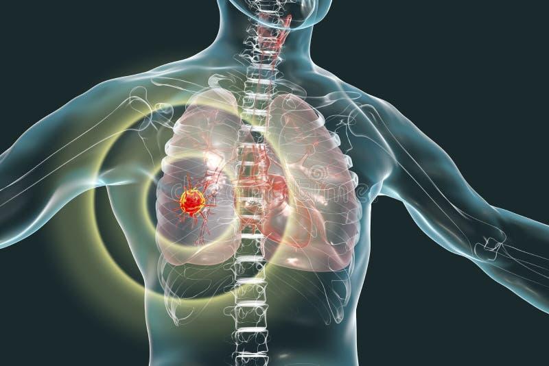 Lungcancer begreppsmässig bild stock illustrationer