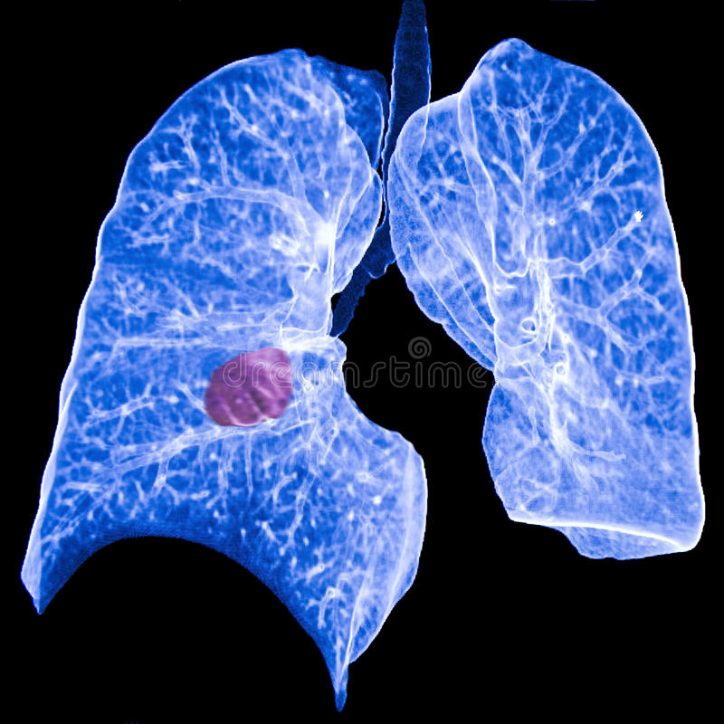 Lungcancer CT royaltyfria bilder