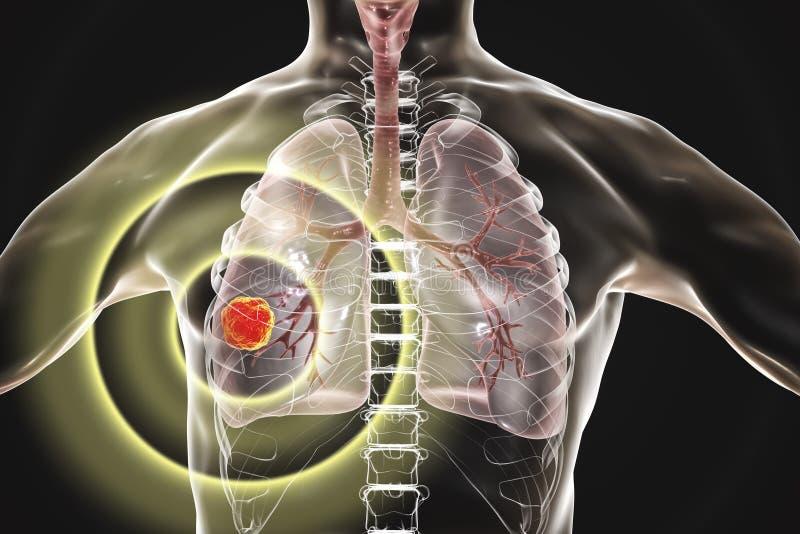 Lungcancer illustration arkivfoto