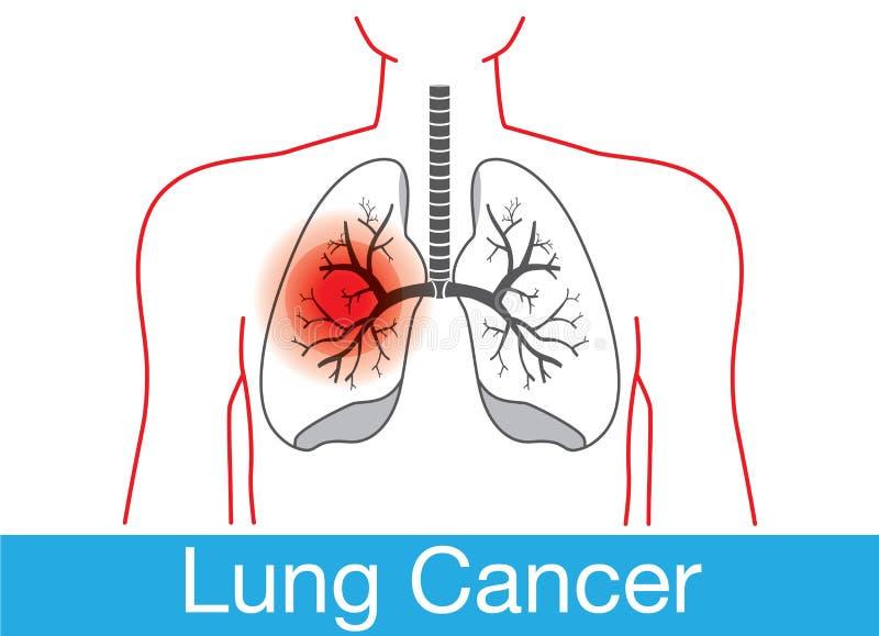 Lungcancermeddelande royaltyfri illustrationer