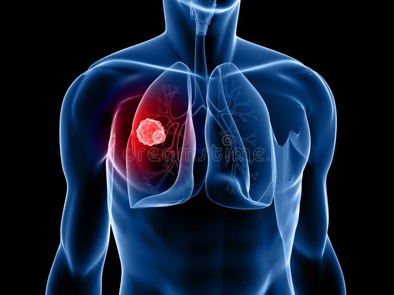 Lungenkrebs lizenzfreie abbildung