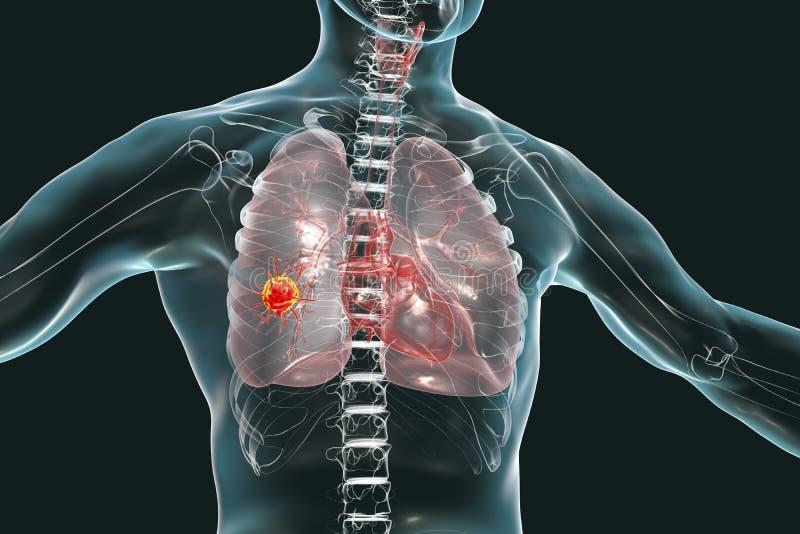 Lungenkrebs, Begriffsbild vektor abbildung