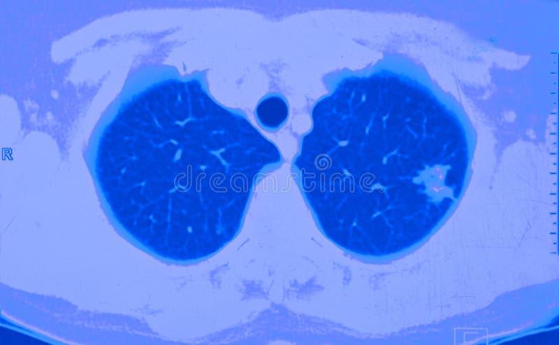 Lungenkrebs CT