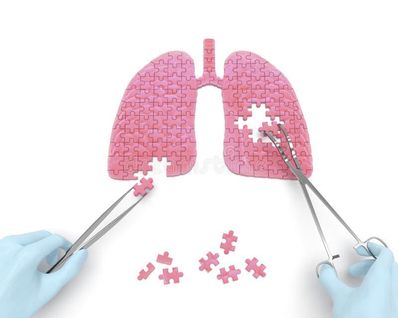Lungeoperation (Medizinpuzzlespielkonzept) lizenzfreie abbildung