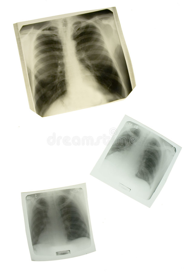 lunges συλλογής β αρχικοί τόν&omicro στοκ φωτογραφία με δικαίωμα ελεύθερης χρήσης