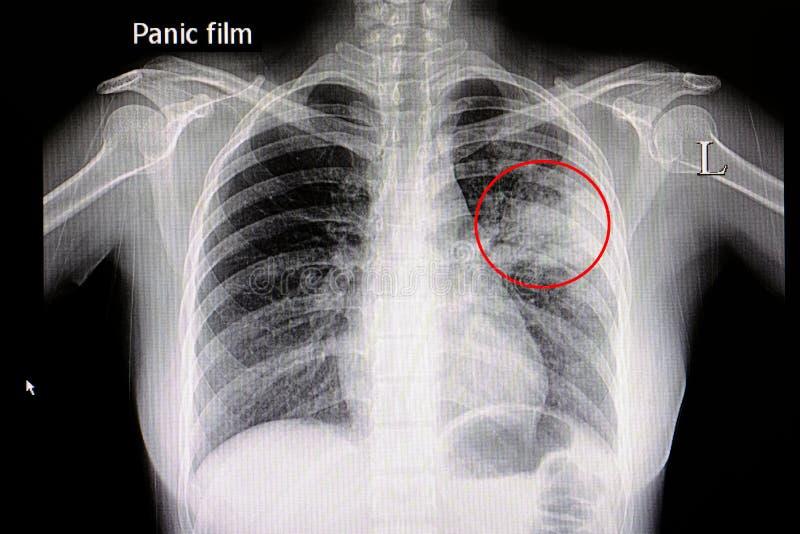 lunginflammation royaltyfri fotografi