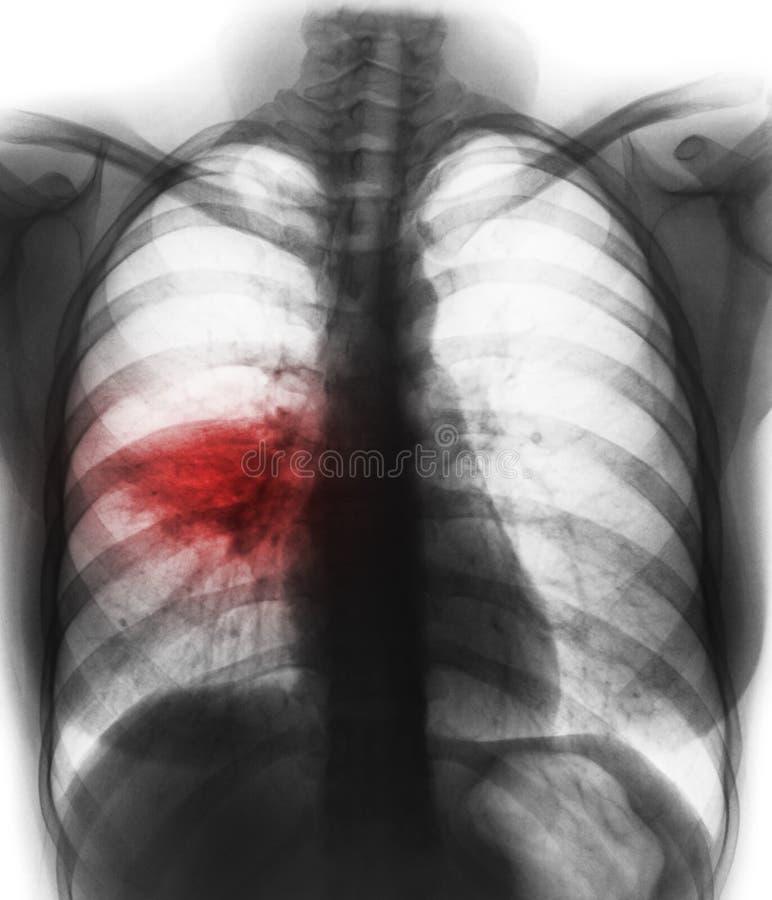 Lunginflammation & x28; den alveolara showen för filmbröstkorgröntgenstrålen infiltrerar på den högra mellersta lungan & x29; royaltyfri foto