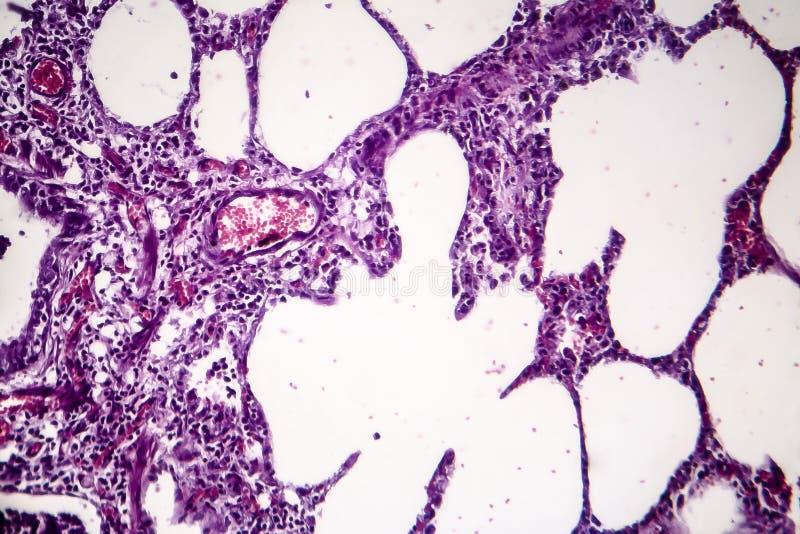 Lunginflammation ljus micrograph arkivfoto