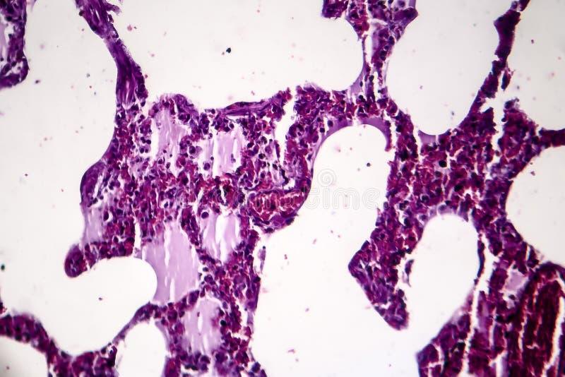 Lunginflammation ljus micrograph arkivfoton