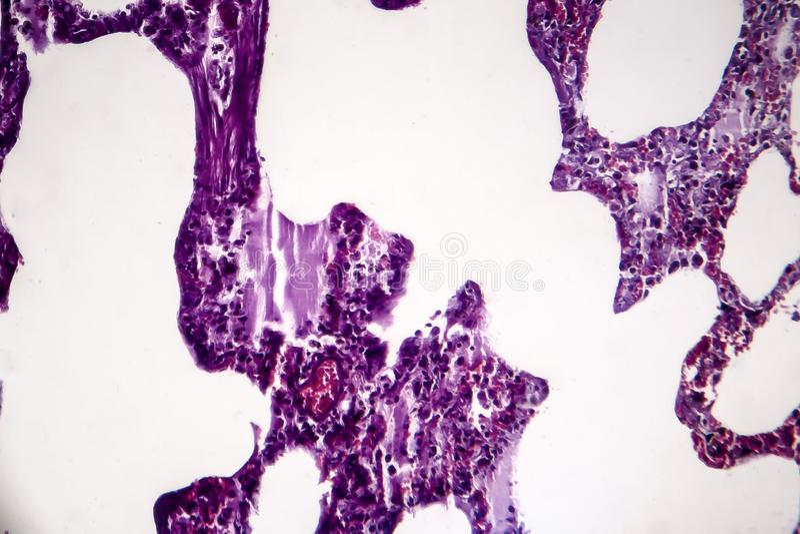 Lunginflammation ljus micrograph royaltyfri fotografi