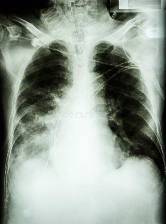 Lunginflammation med respiratoriskt fel arkivfoto