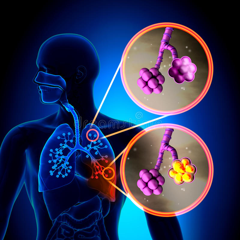 Lunginflammation - normala alveoler vs lunginflammation stock illustrationer
