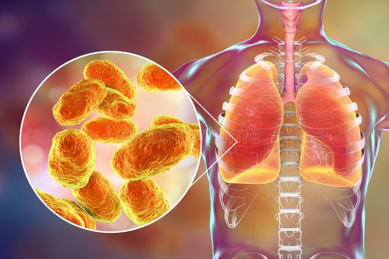 Lunginflammation som orsakas av Hemophilus - influenzaebakterier, medicinskt begrepp royaltyfri bild