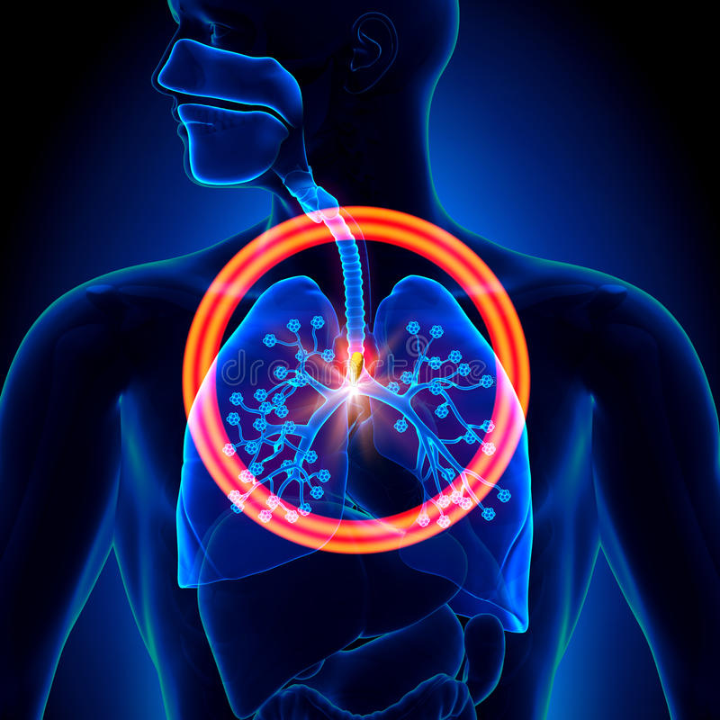 Free Lungs Foreign Object - Inhaled Or Swallowed Royalty Free Stock Photo - 41619145