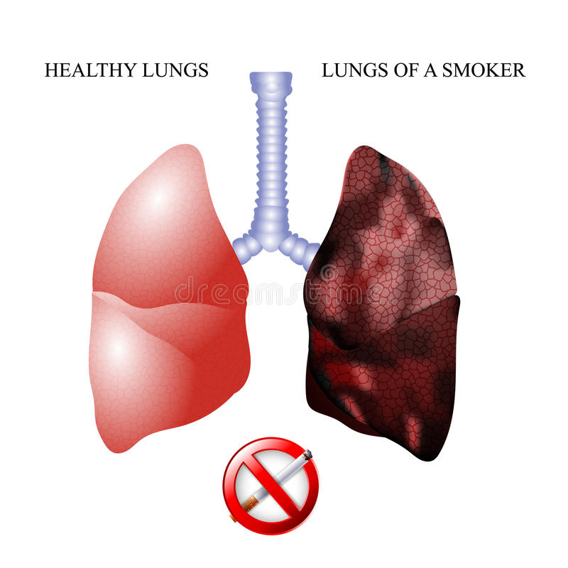 The lungs of a healthy person and smoker. The dangers of Smoking, the lungs of a healthy person and smoker royalty free illustration