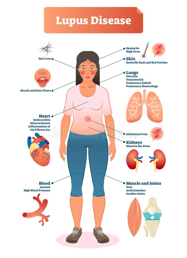 Lupus disease vector illustration. Labeled diagram with sickness symptoms. Lupus disease vector illustration. Labeled diagram with sickness symptoms, like hair vector illustration