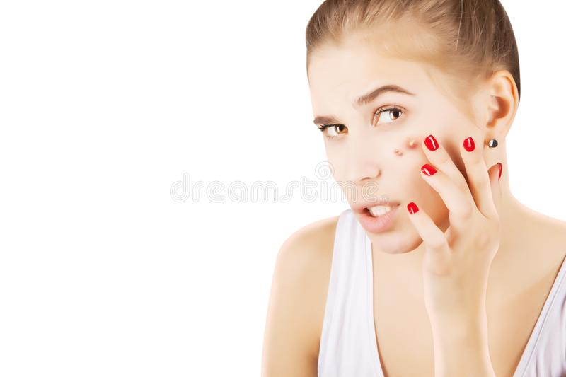 Lutas novas do modelo com acne foto de stock royalty free
