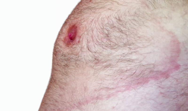 Lyme borreliosis - erythemamigrans royaltyfri bild