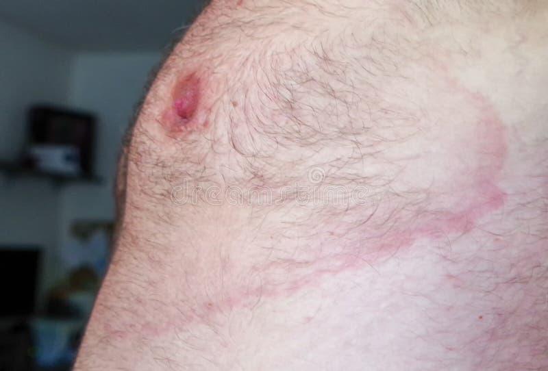 Lyme-borreliosis - Infektionskrankheit stockfotografie