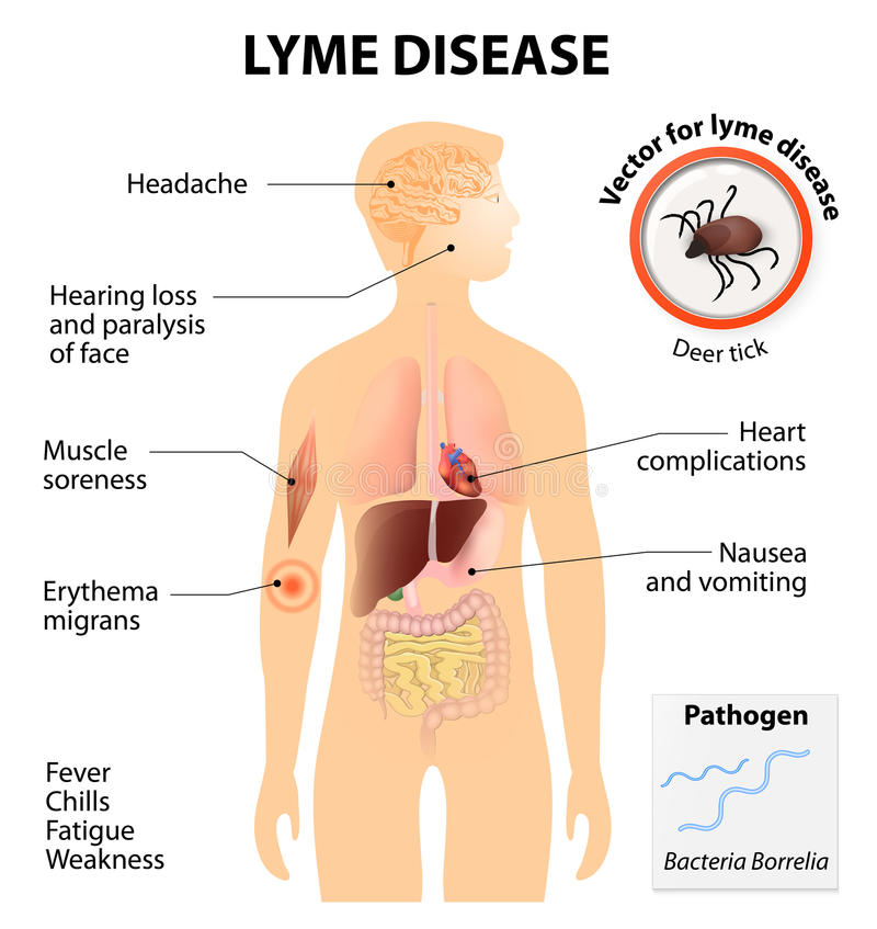 Lyme disease or Lyme borreliosis vector illustration