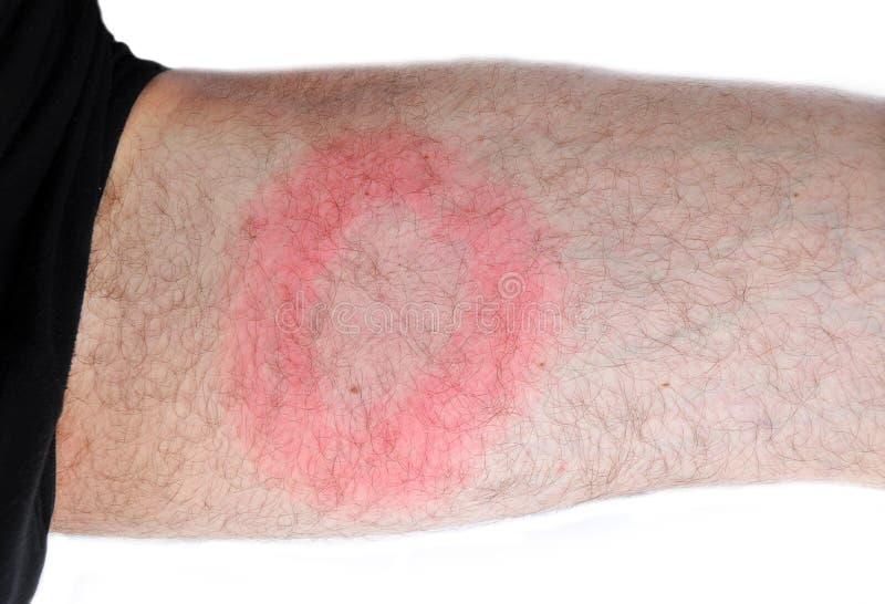 Lyme Krankheit, bakterielle Infektion lizenzfreie stockfotografie