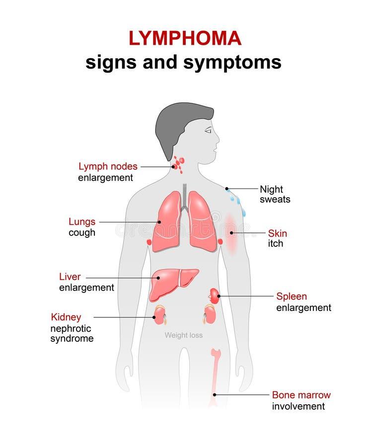 lymphom Zeichen und Symptome lizenzfreie abbildung