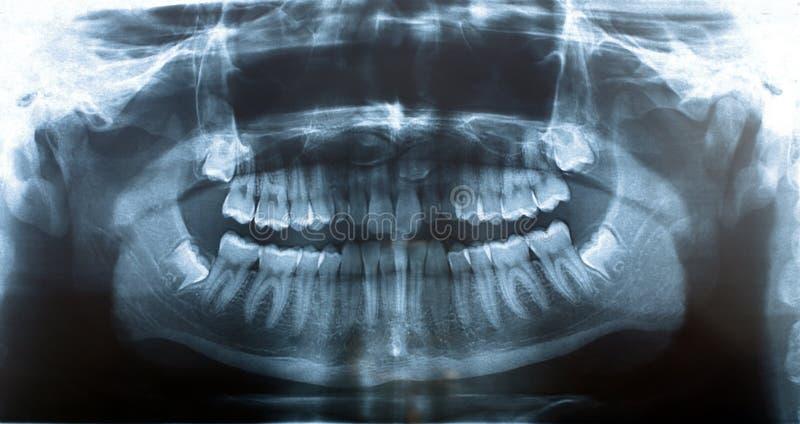 Mâchoire de rayon X de photo photographie stock libre de droits