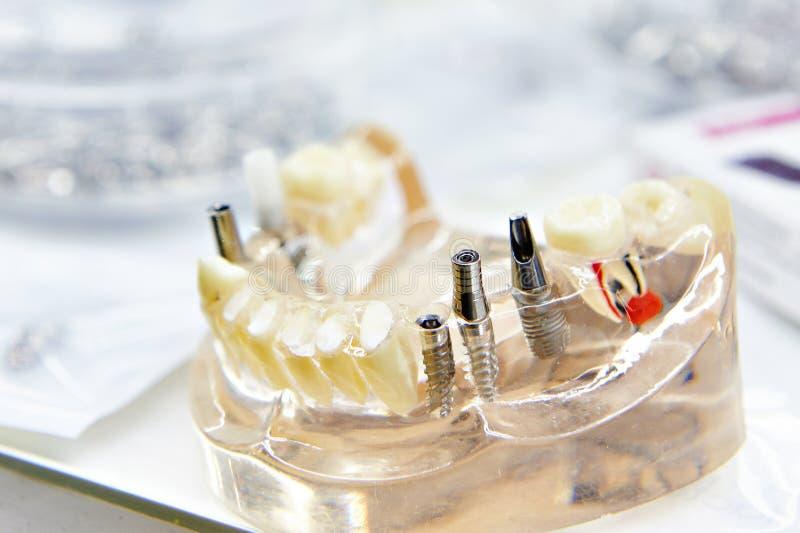 Mâchoire en plastique artificielle avec les implants dentaires photo libre de droits