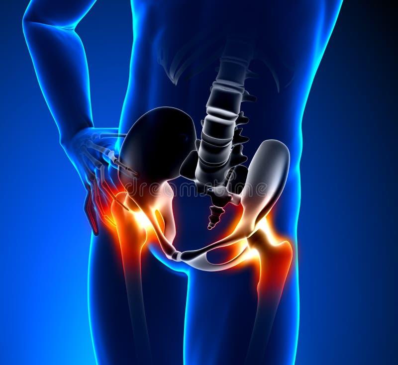 Mâle de douleur de hanche illustration stock