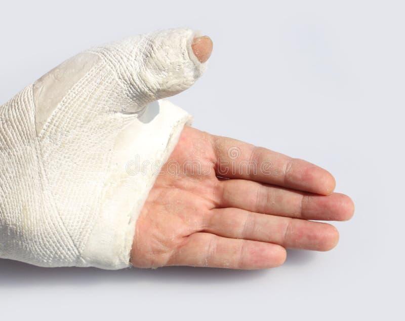 Mão com o giz para imobilizar o polegar com um osso quebrado fotos de stock