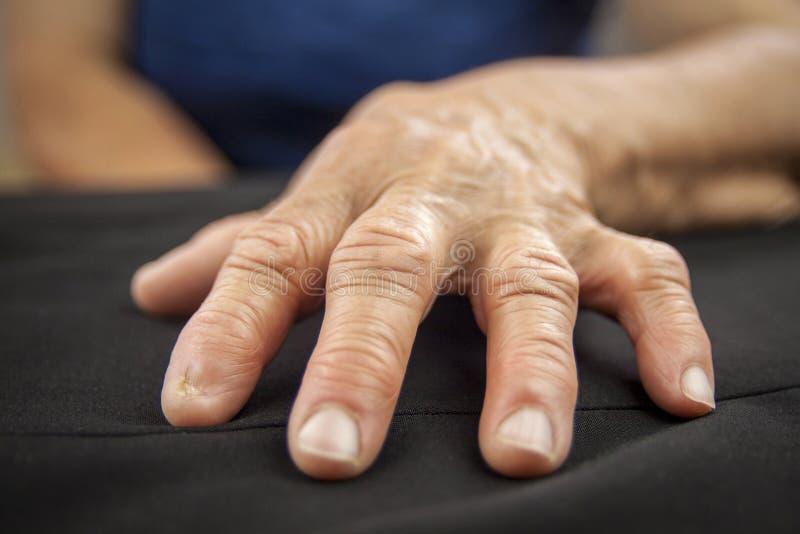 Mão da artrite Rheumatoid fotos de stock