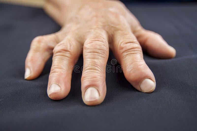 Mão da artrite Rheumatoid imagens de stock